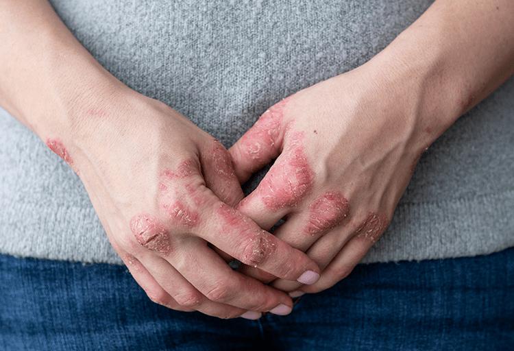 psoriasis no contagiosa
